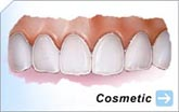 Bonding | Enamel Reshaping | Orthodontics | Tooth Whitening | Veneers