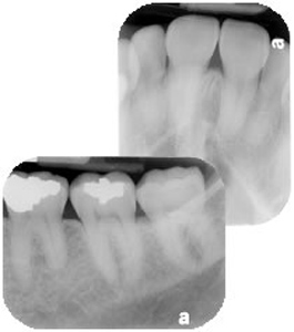The Importance of Dental X-rays